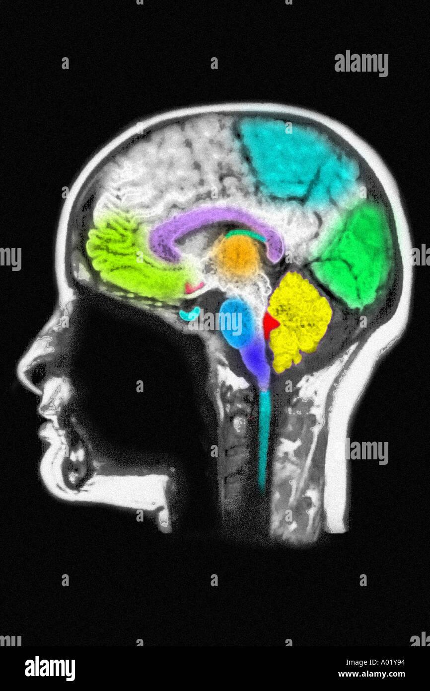 MRI of brain showing normal anatomy Stock Photo: 3217299 - Alamy