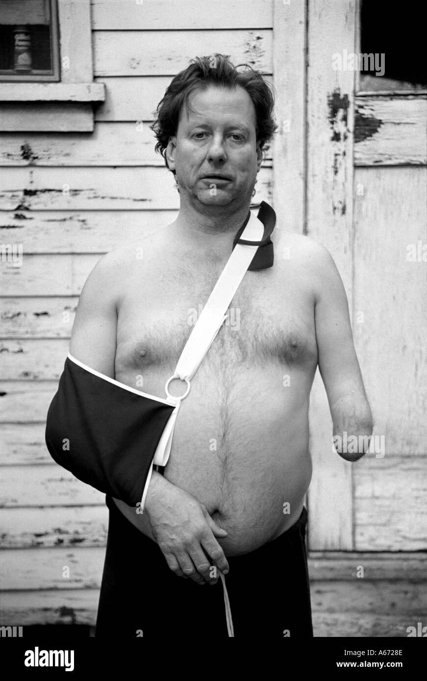 one armed man with good arm in a sling stock photo 422542 alamy