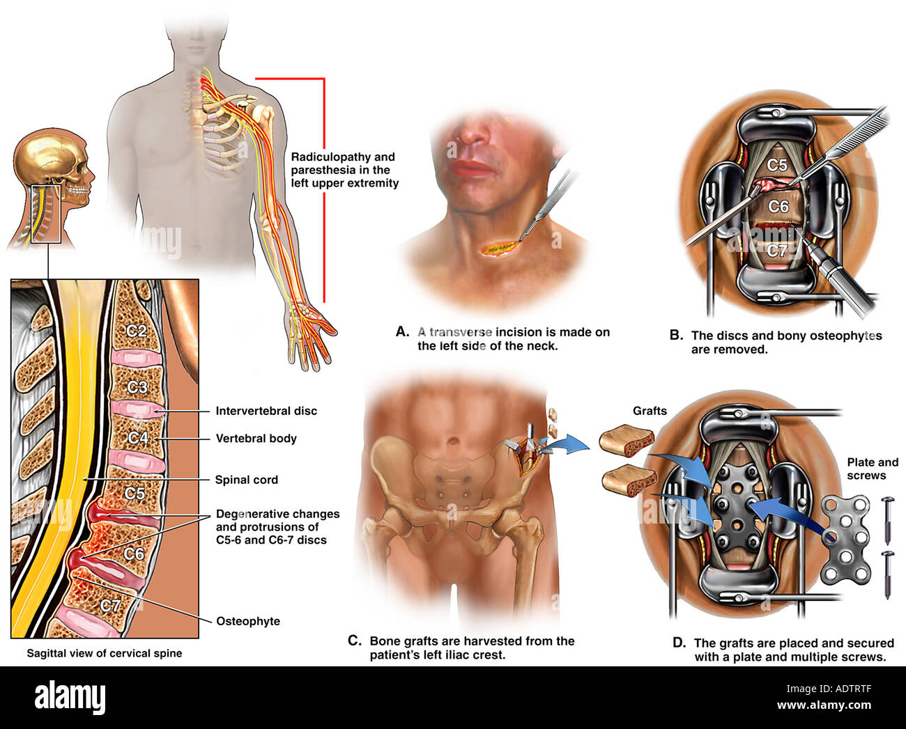 Cervical Spine Injuries With Surgical Fusion Stock Photo 7710158