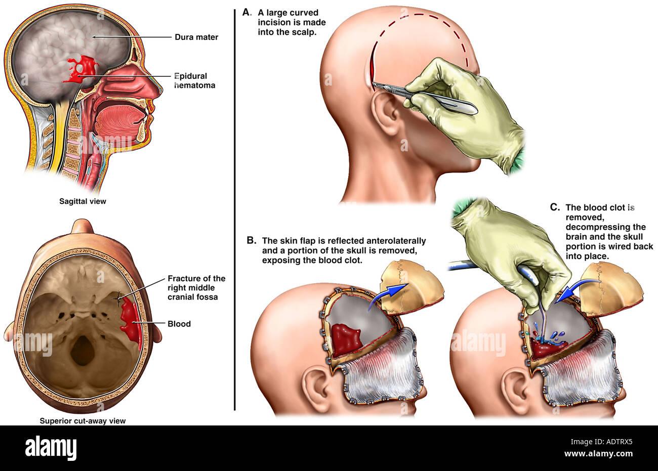 Enchanting Jaw Wired Shut Surgery Vignette - Wiring Schematics and ...