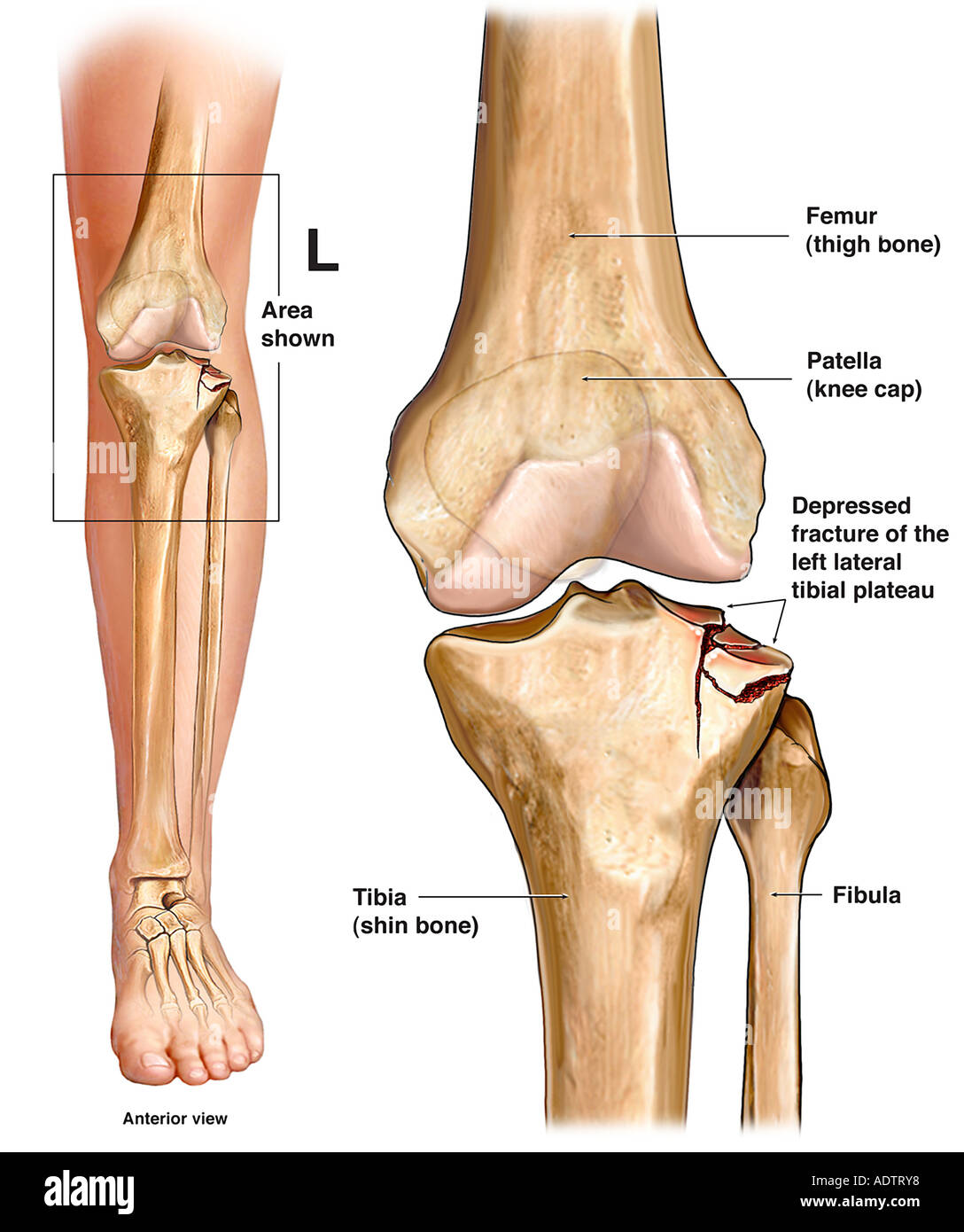 Left knee tibial plateau fracture stock photo 7710199 alamy left knee tibial plateau fracture ccuart