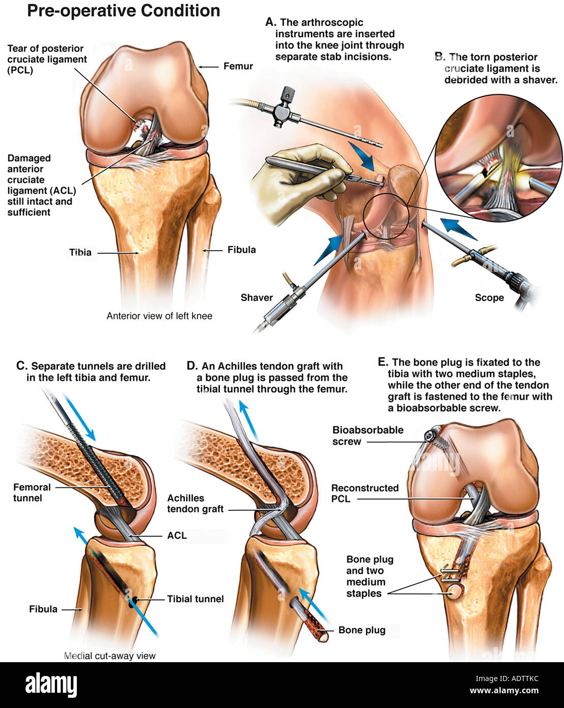 Left Knee Injuries with Posterior Cruciate Ligament Reconstruction ...