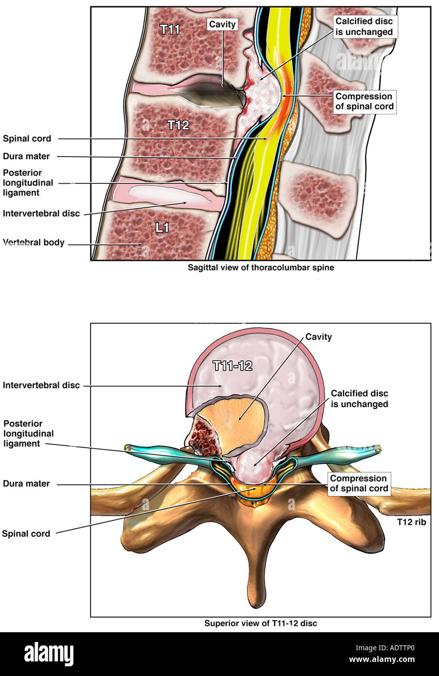 Failure to Repair Rupture of T11-12 Disc and Severe Spinal Cord Compression - Stock Image