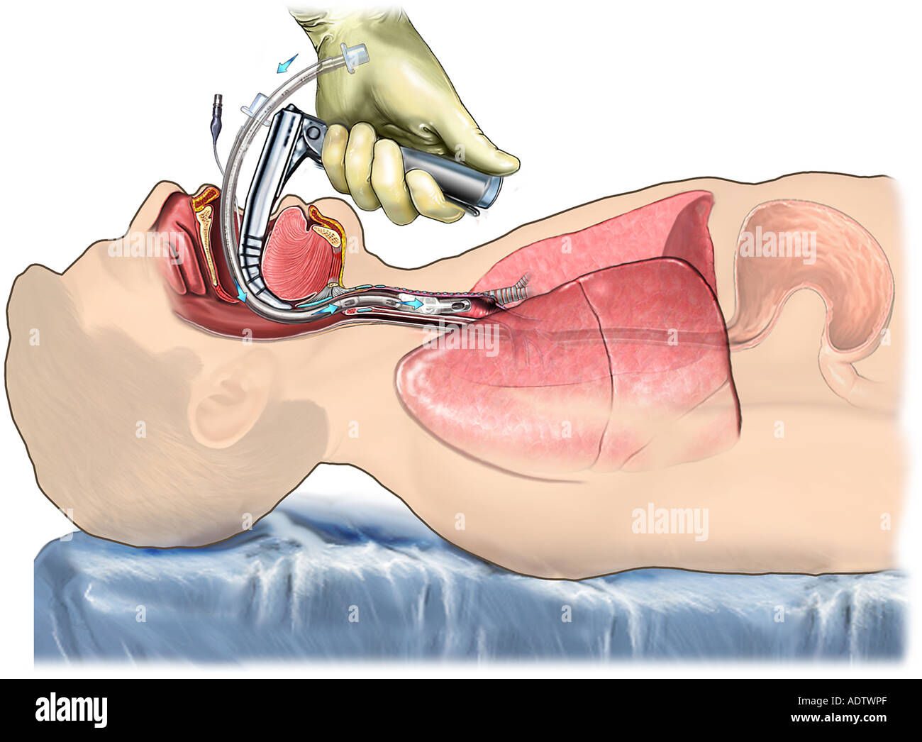 Proper Laryngoscopic Endotracheal Intubation Stock Photo 7710510