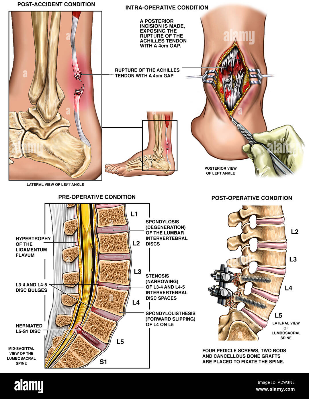 Rupture Of The Achilles Tendon And Lower Back Injuries With Surgical