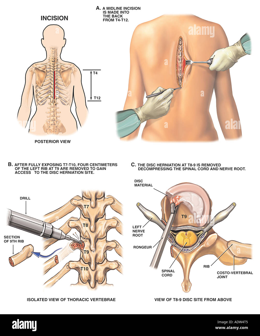 Back Surgery T8t9 Thoracic Discectomy Procedure Stock Photo