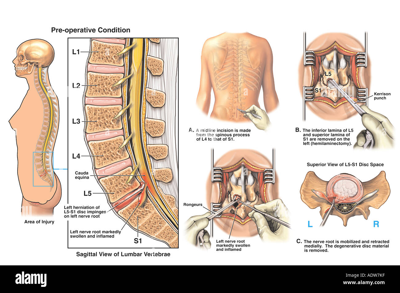 L5-S1 Disc Herniation with Hemilaminectomy and Discectomy Procedure ...