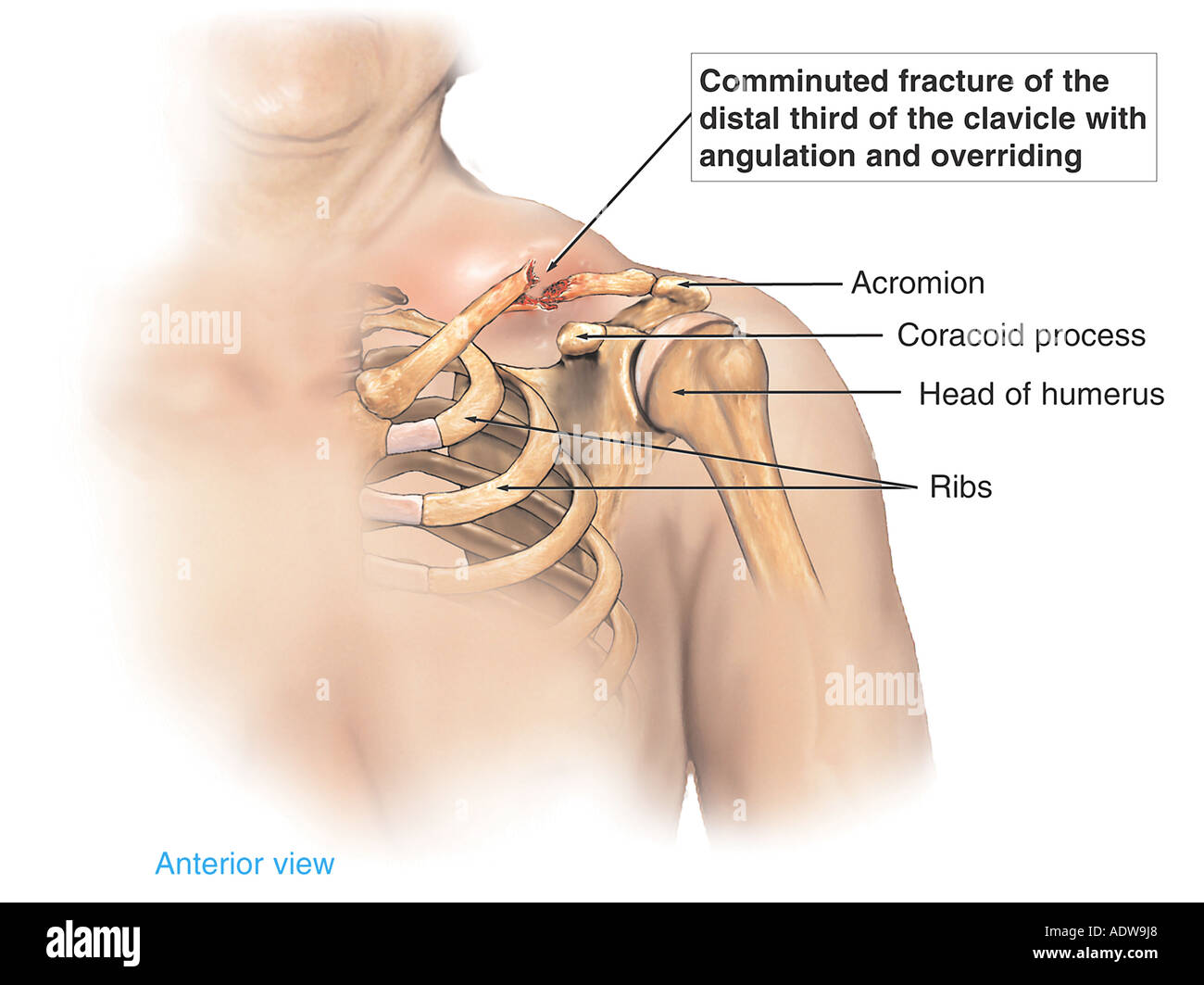 Shoulder injury displaced clavicle fracture broken collar bone shoulder injury displaced clavicle fracture broken collar bone ccuart Images