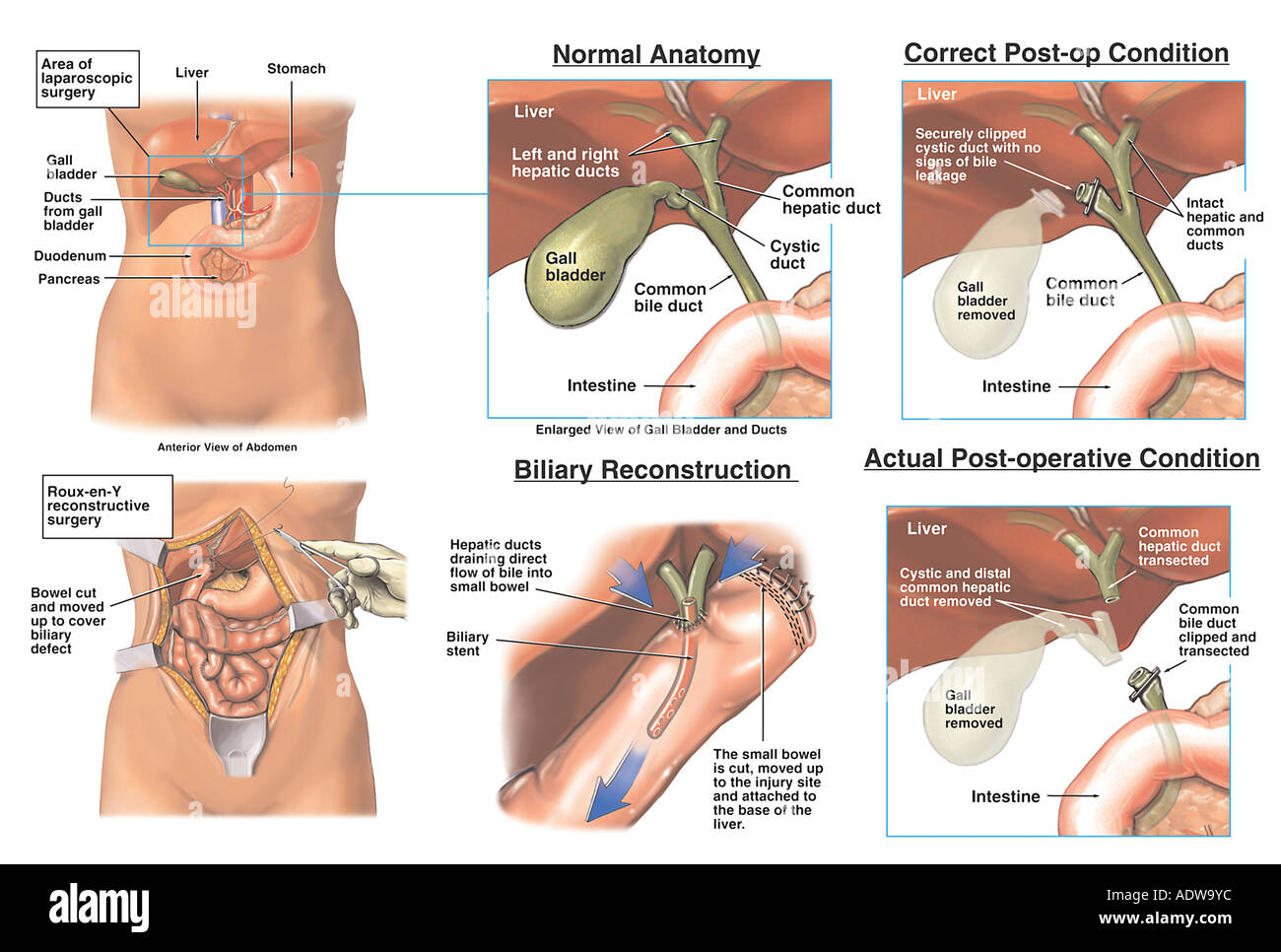 Laparoscopic Cholecystectomy Gallbladder Removal Procedure With
