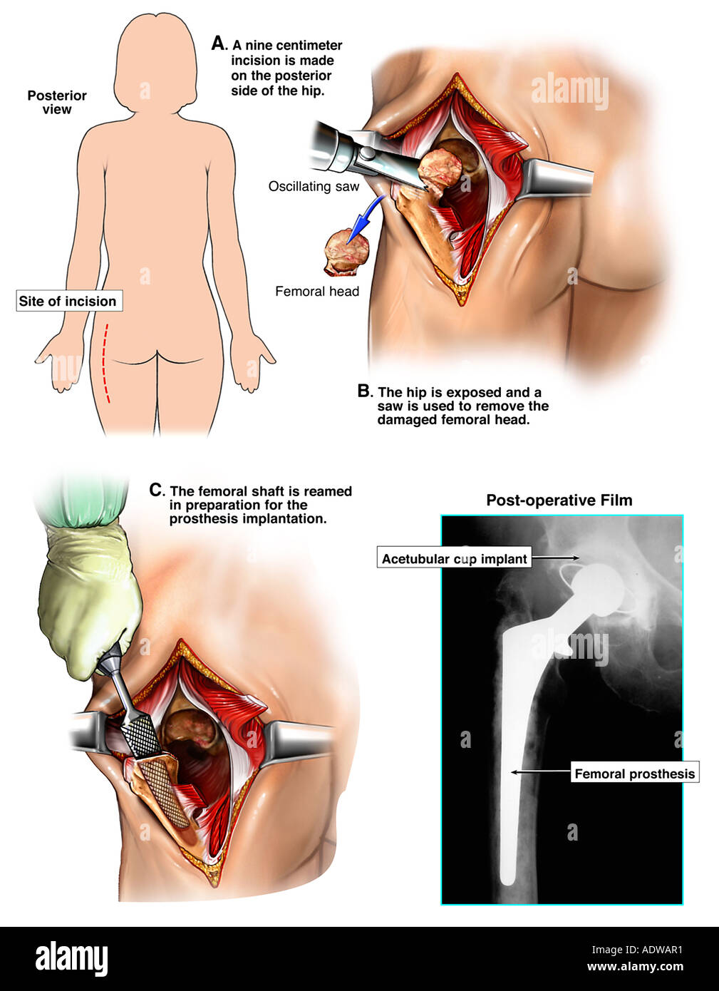 Hip Osteoarthritis with Hip Replacement Surgery Stock Photo: 7713008 ...