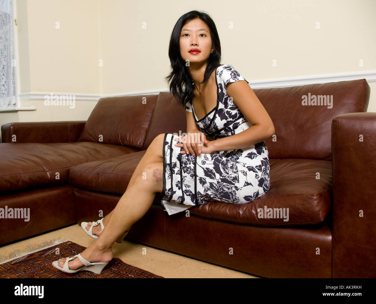 A Young Asian Woman On A Sofa At Home Showing Her Bruises