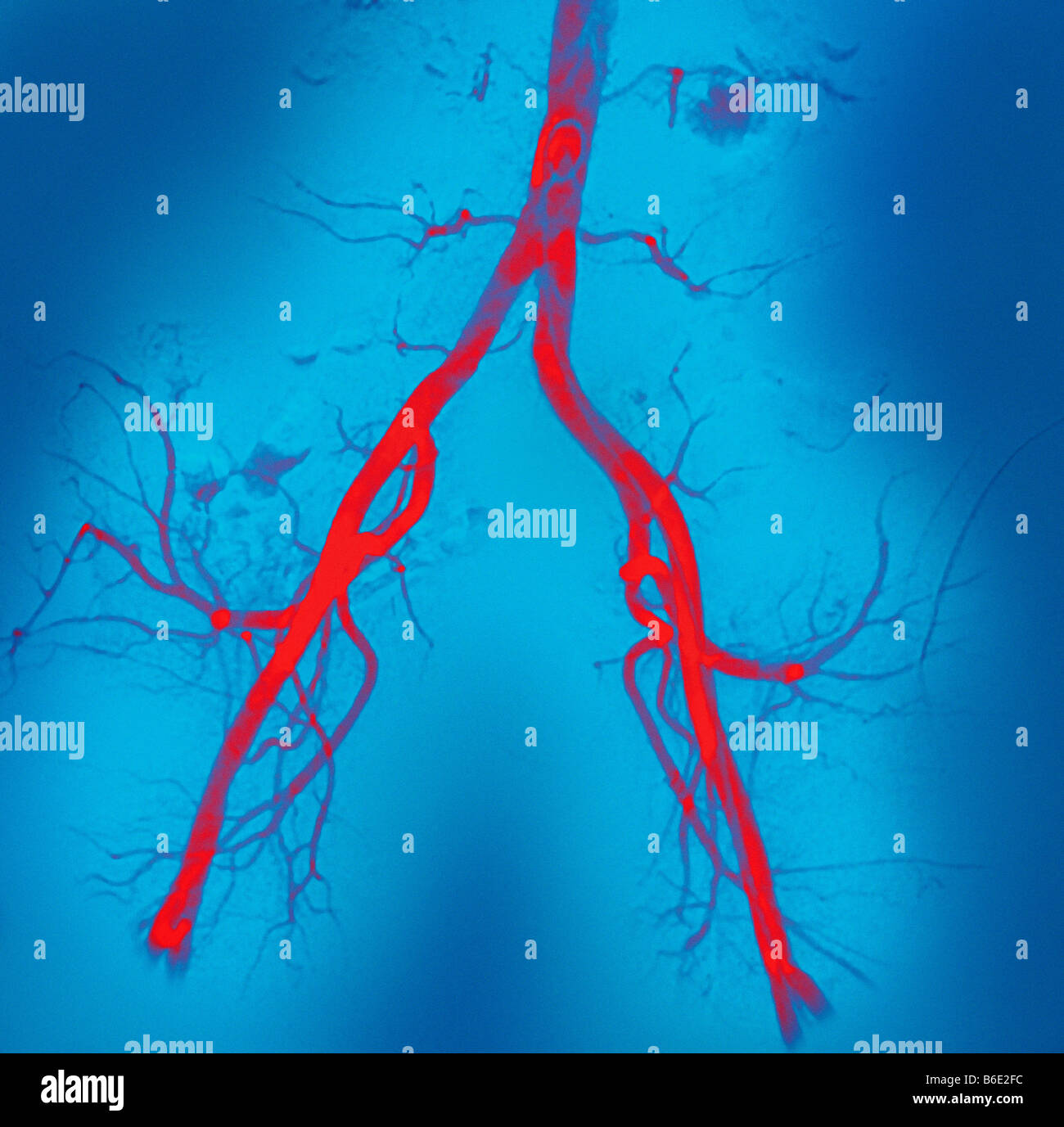 Normal Abdominal Arteries Coloured Angiogramblood Vessel X Ray Of