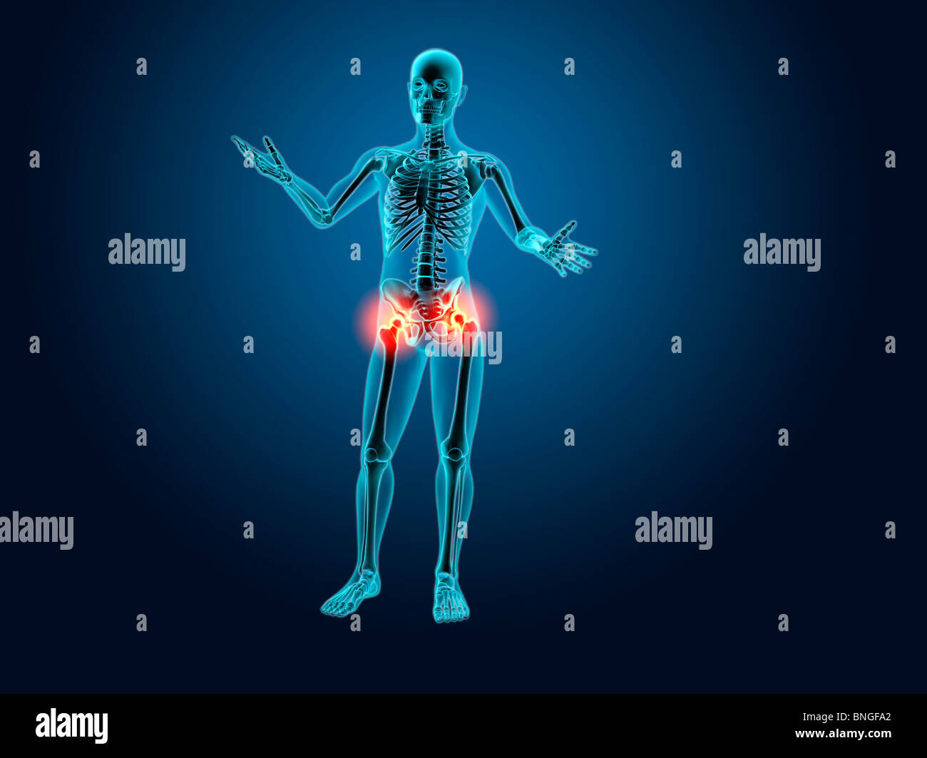 X-ray view of a human skeleton with hip joint inflammation Stock ...