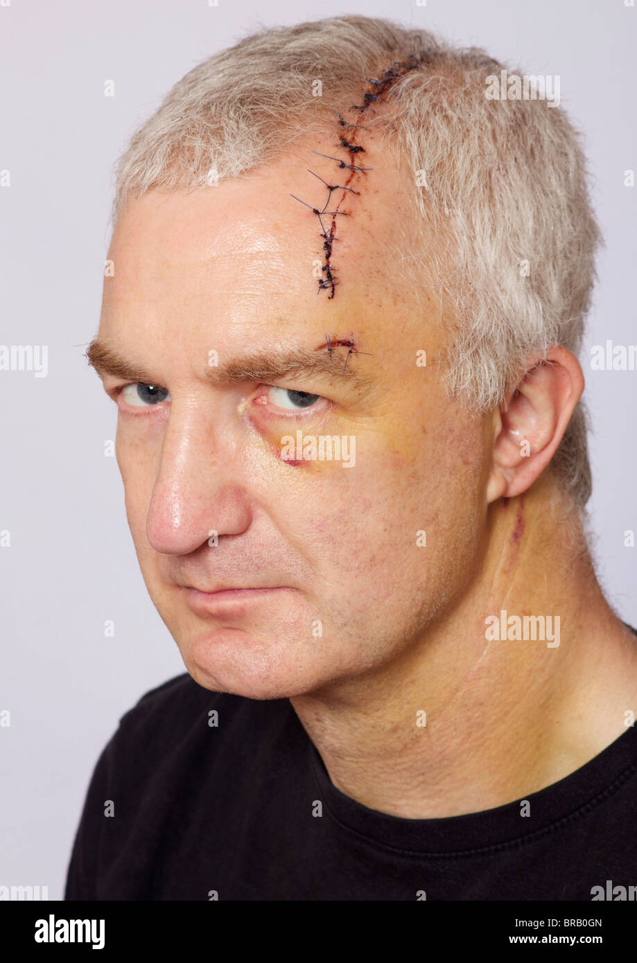 man with long head wound and stitches stock photo 31589397 alamy