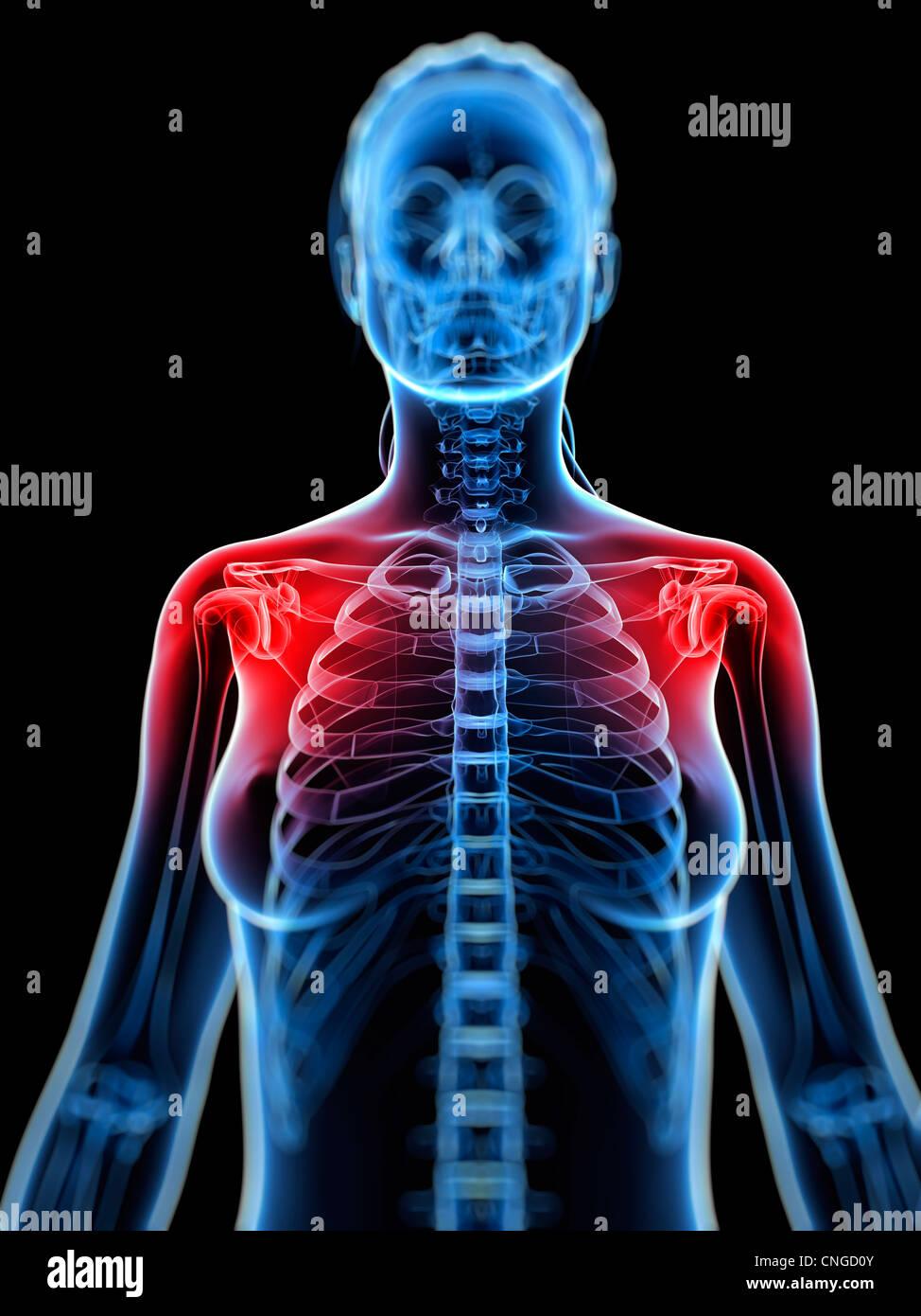 Shoulder pain  conceptual artwork - Stock Image