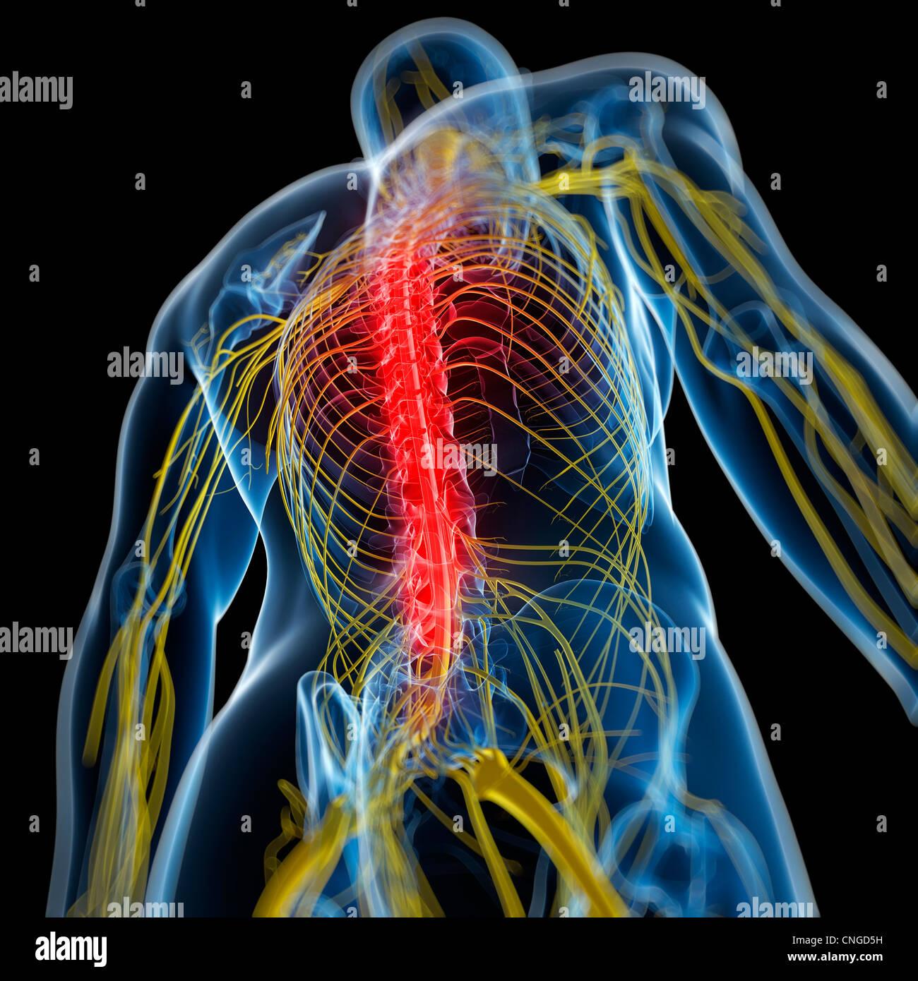 Back pain  conceptual artwork Stock Photo