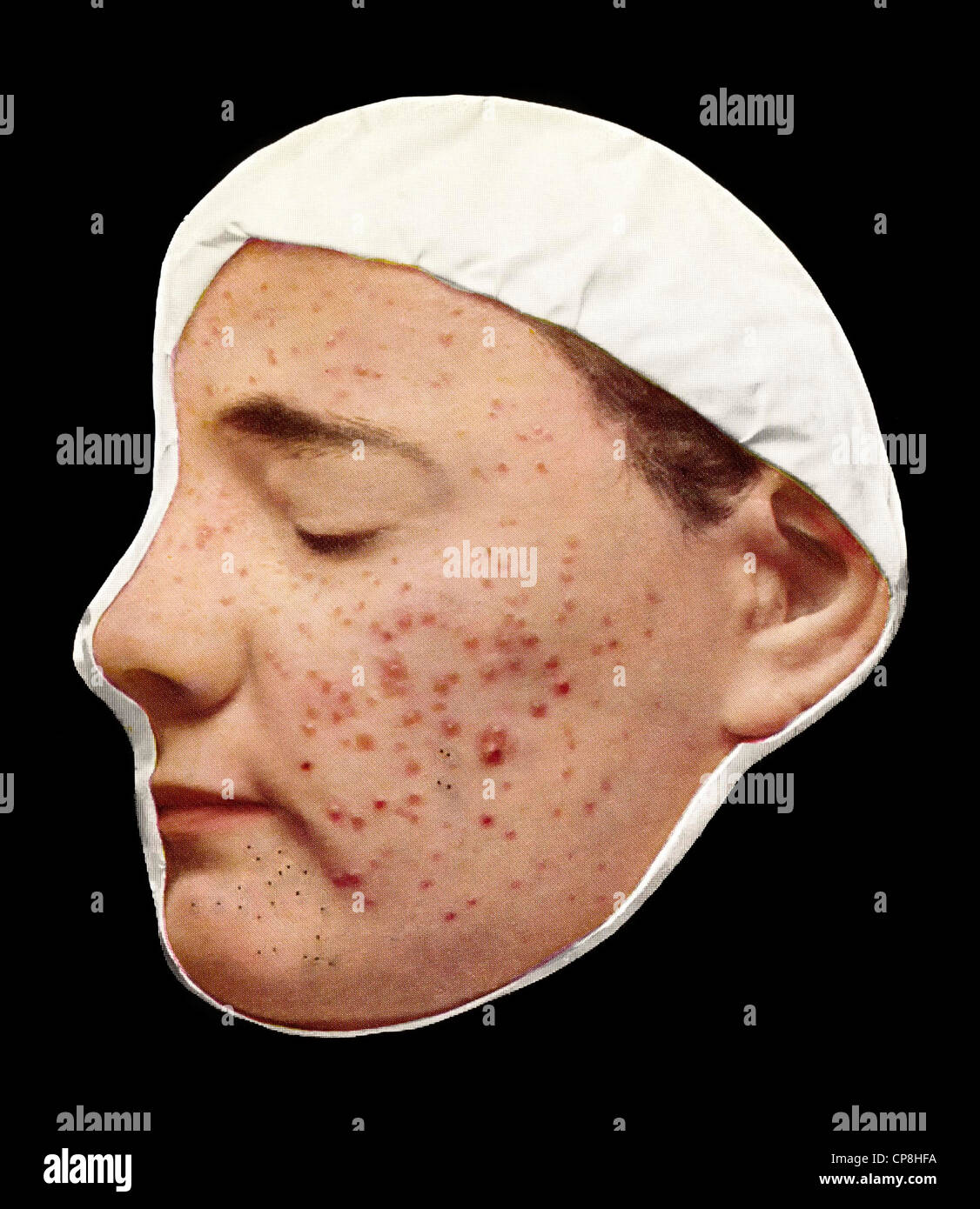 Acne vulgaris stock photos acne vulgaris stock images for Mobel 19 jahrhundert