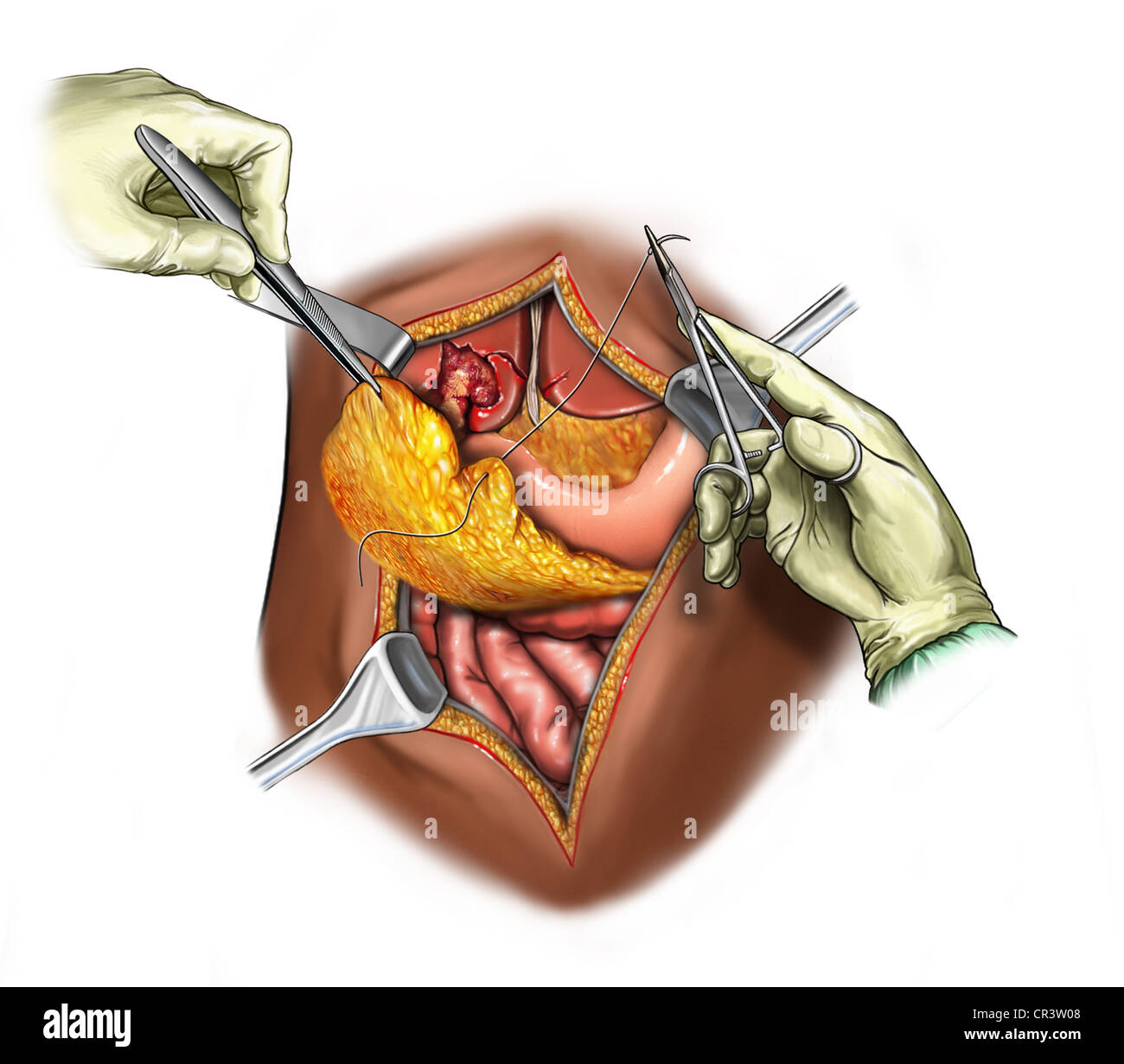 Liver Laceration Repair - Stock Image