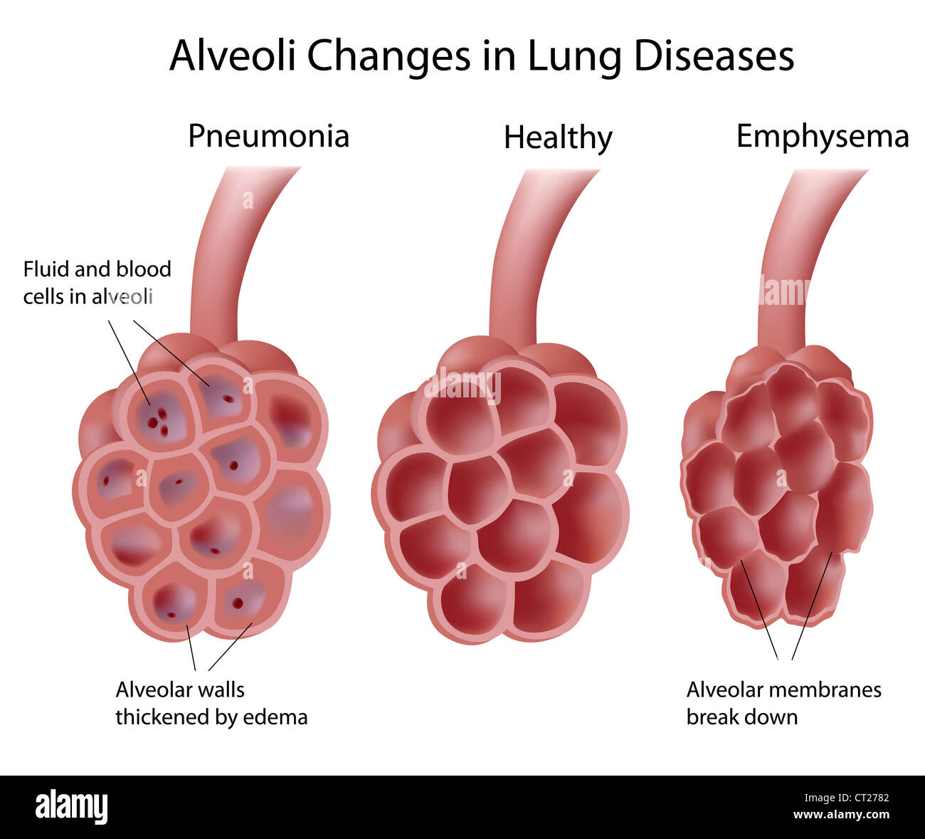 Alveoli and lung diseases stock photo 49222098 alamy alveoli and lung diseases ccuart Choice Image