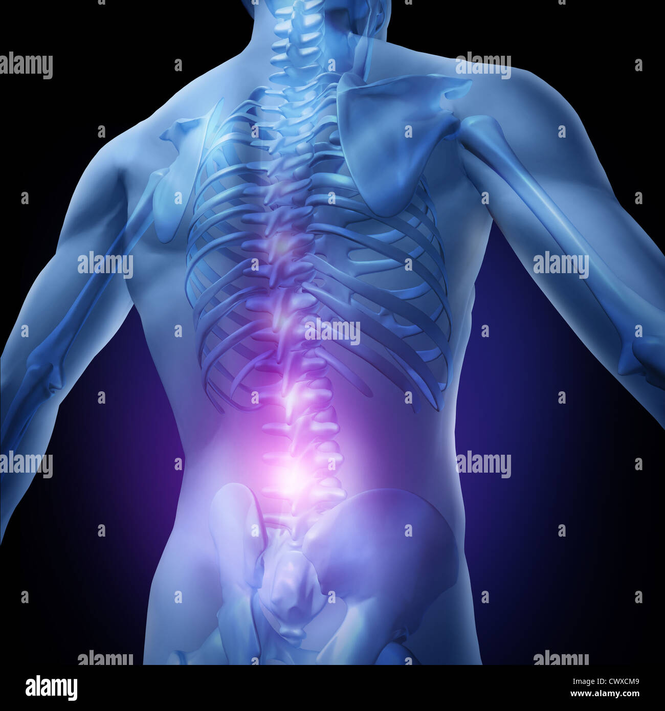 Lower back pain and human backache with an upper torso body skeleton ...