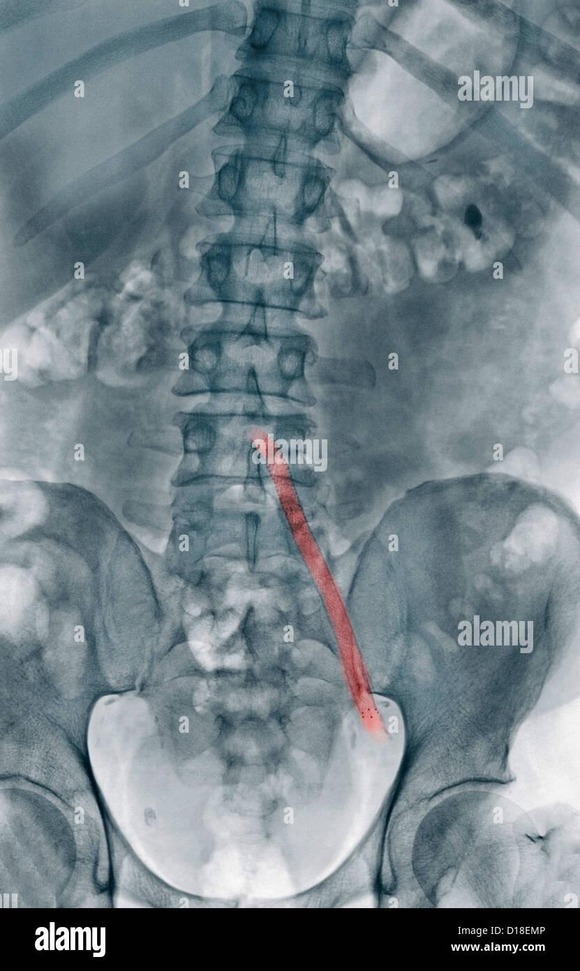 X-ray, aorto-iliac wire-mesh bypass graft - Stock Image