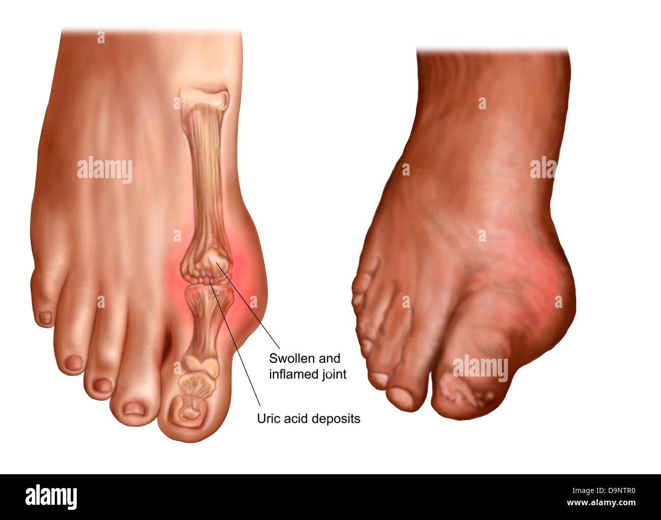 Anatomy of a swollen foot Stock Photo: 57643460 - Alamy