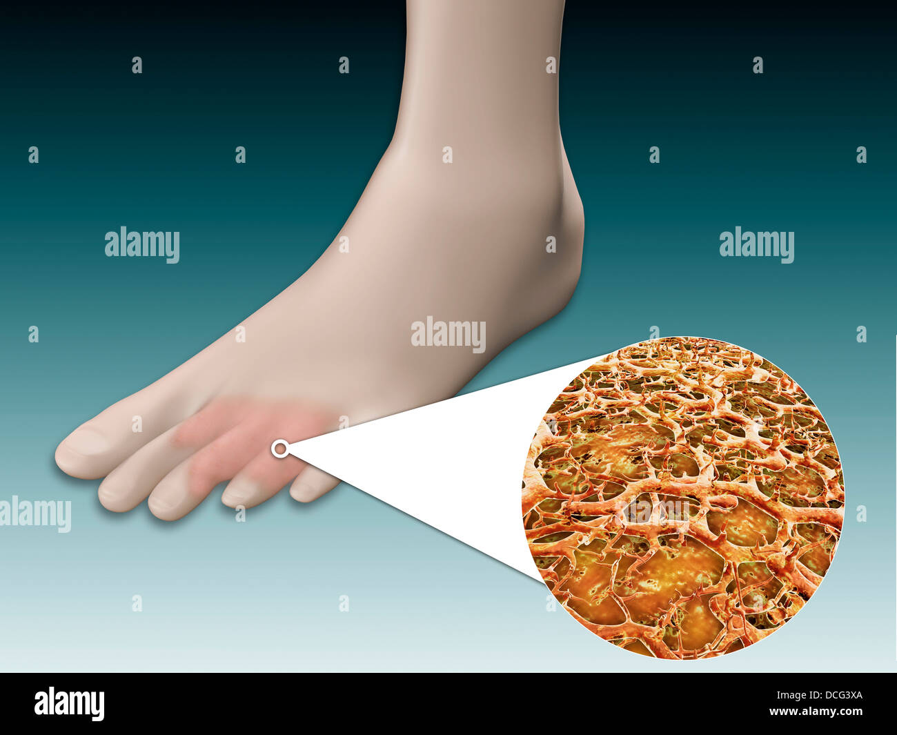 Anatomy Of Foot Fungus With Microscopic Close Up Stock Photo