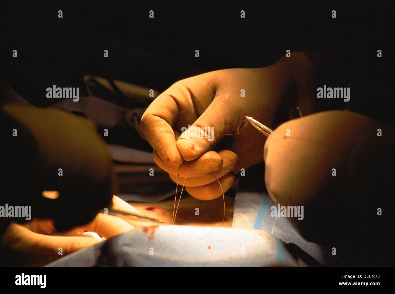 CLOSE UP OF HANDS IN SURGICAL GLOVES STITCHING WOUND - Stock Image