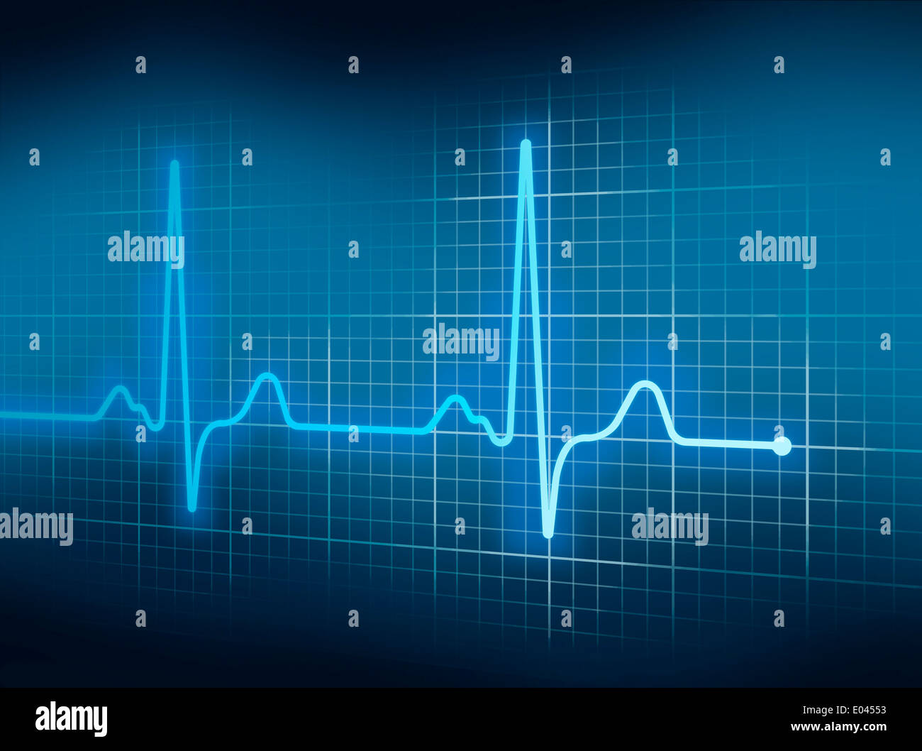 Blue electrocardiography heart beat pulse on graph stock photo blue electrocardiography heart beat pulse on graph ccuart Gallery