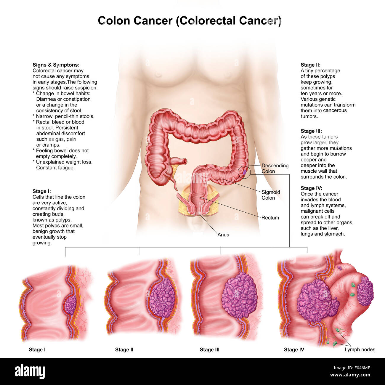 Medical illustration depicting the different stages of colon cancer ...