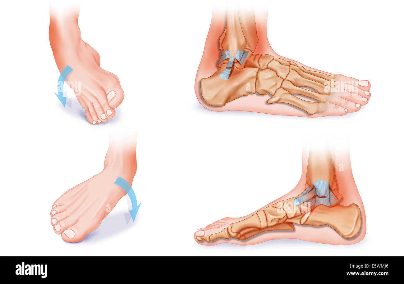 Sprained ankle, drawing Stock Photo: 72479742 - Alamy