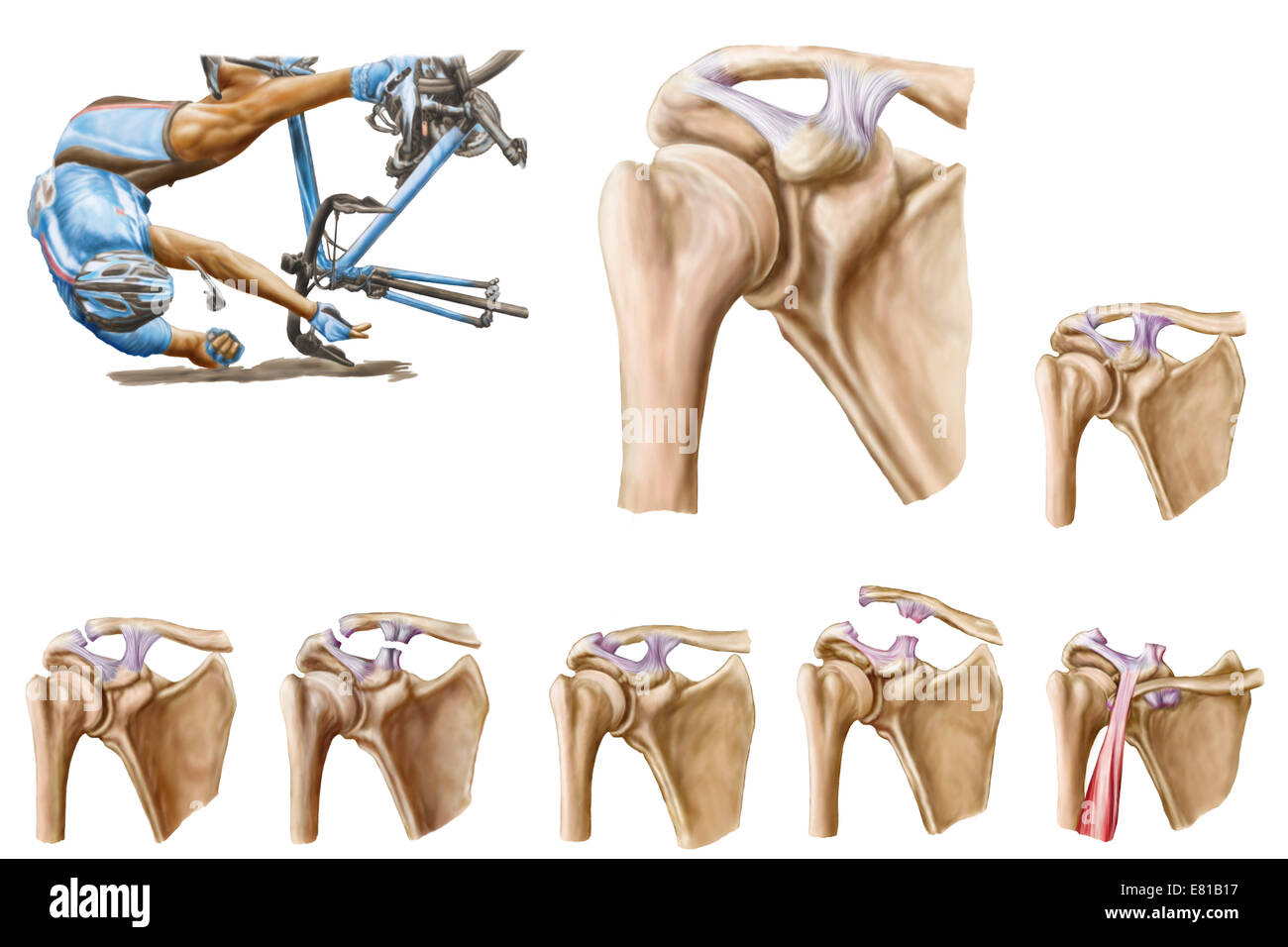 Anatomy of acromioclavicular joint rupture and displacement Stock ...