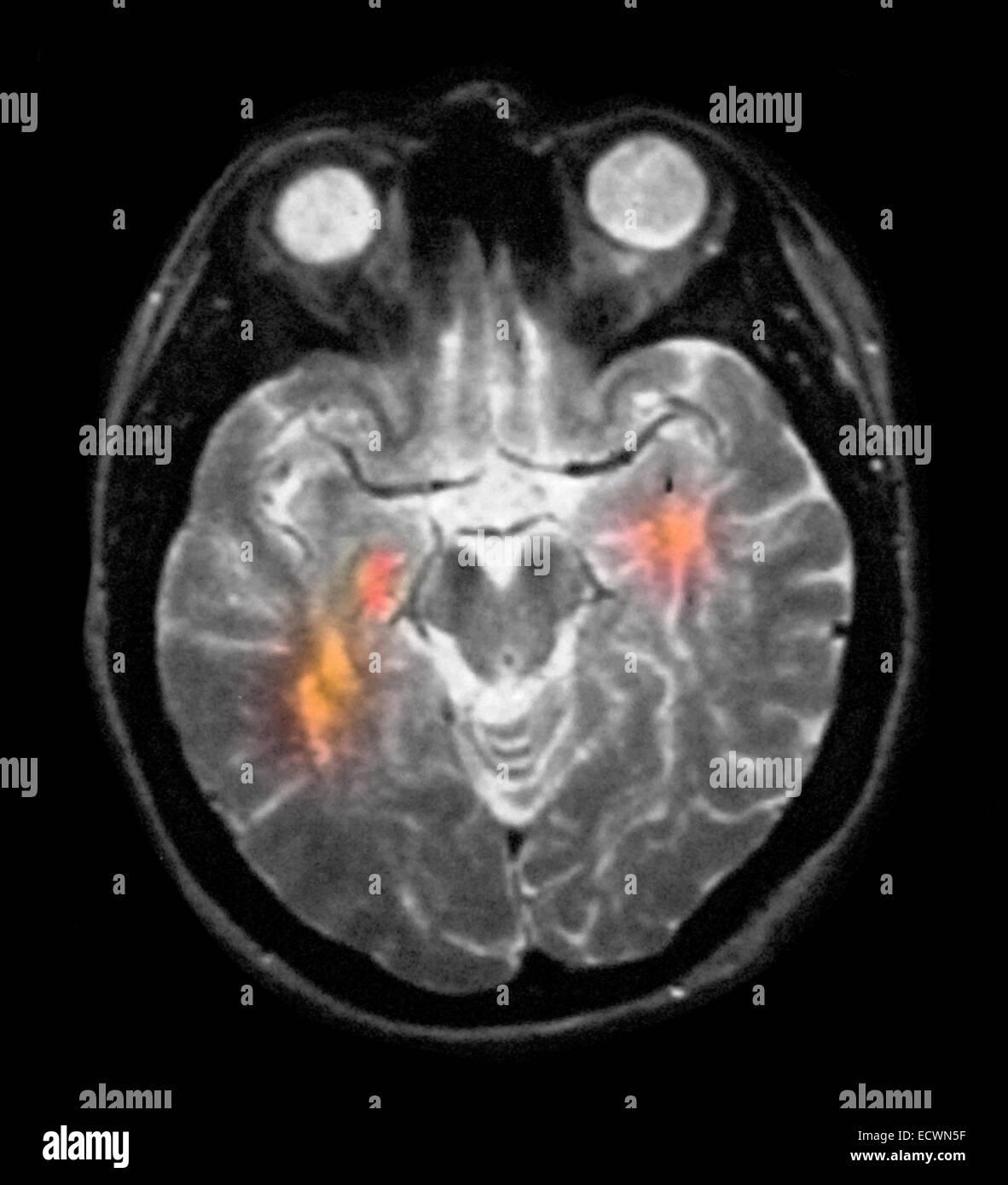 brain mri showing multiple sclerosis 36 year old female stock photo