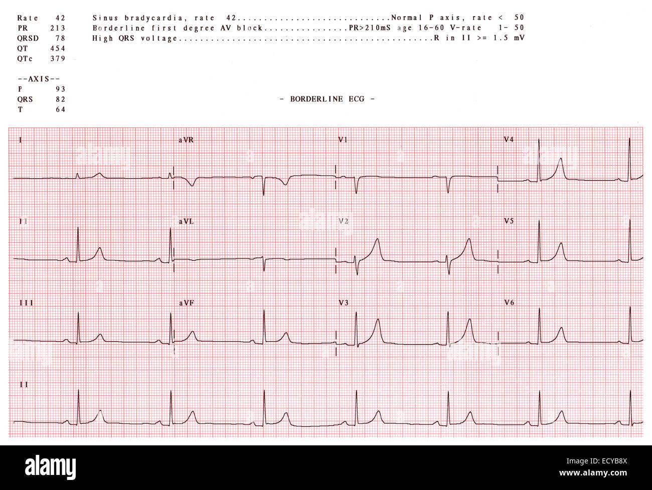 Abnormal electrocardiogram showing a sinus bradycardia. Stock Photo