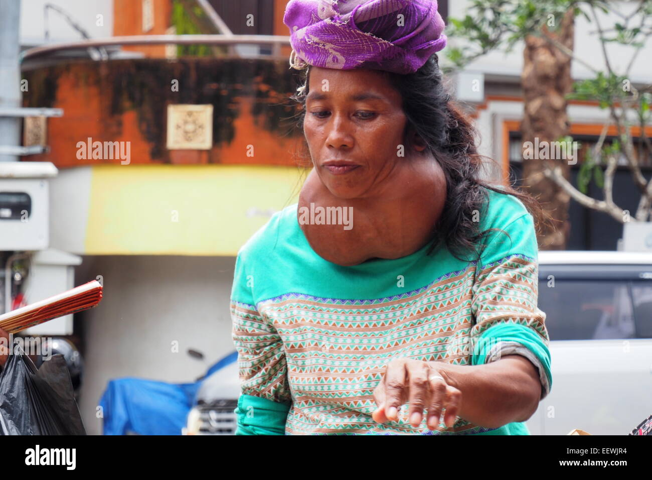 Street hawker with a large benign goitre in Ubud, Bali. Stock Photo