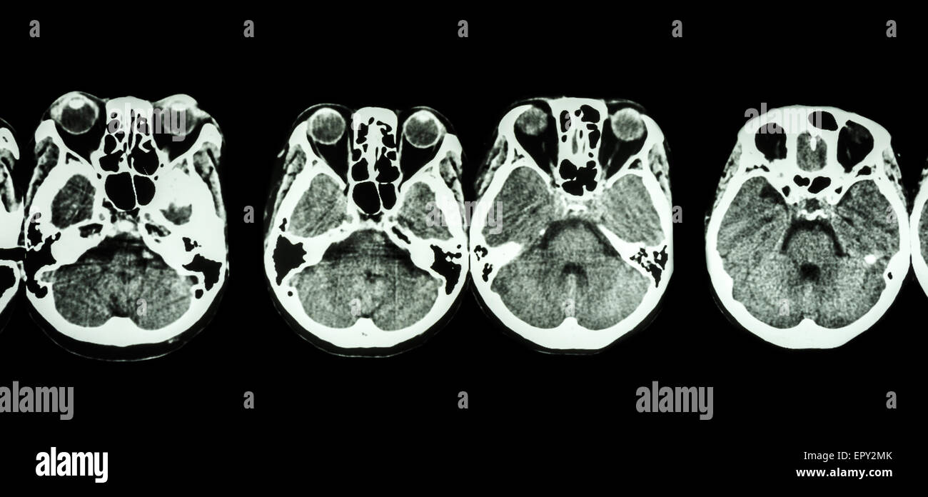 CT scan of brain and base of skull ( show structure of eye , ethmoid ...