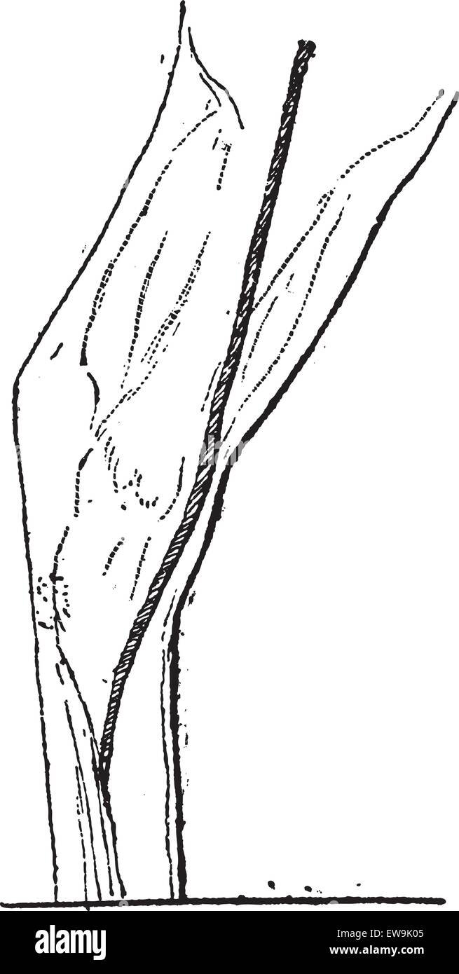Old Engraved Illustration Of Great Saphenous Vein Or Long Saphenous
