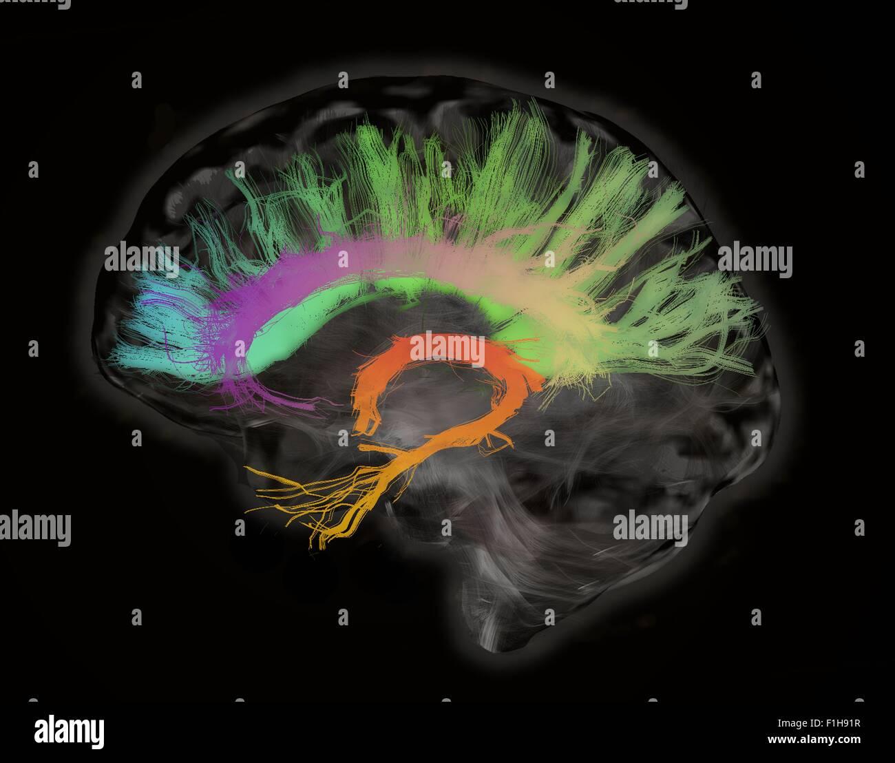 The fiber tracts involved aging. splenium genu corpus callosum fornix cingulum bundle. Human subject - Stock Image