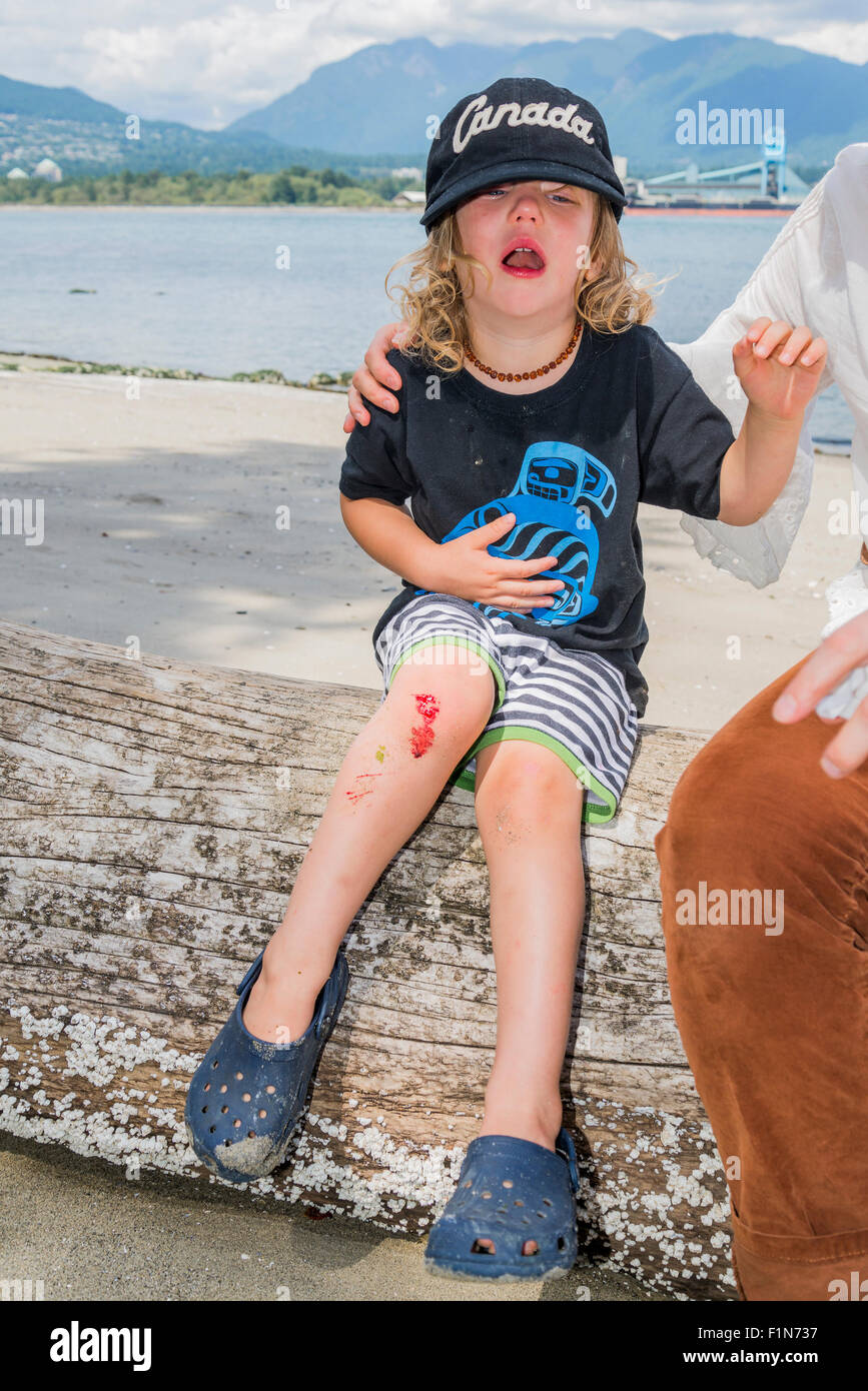 Young boy crying because of bloody cut knee. - Stock Image