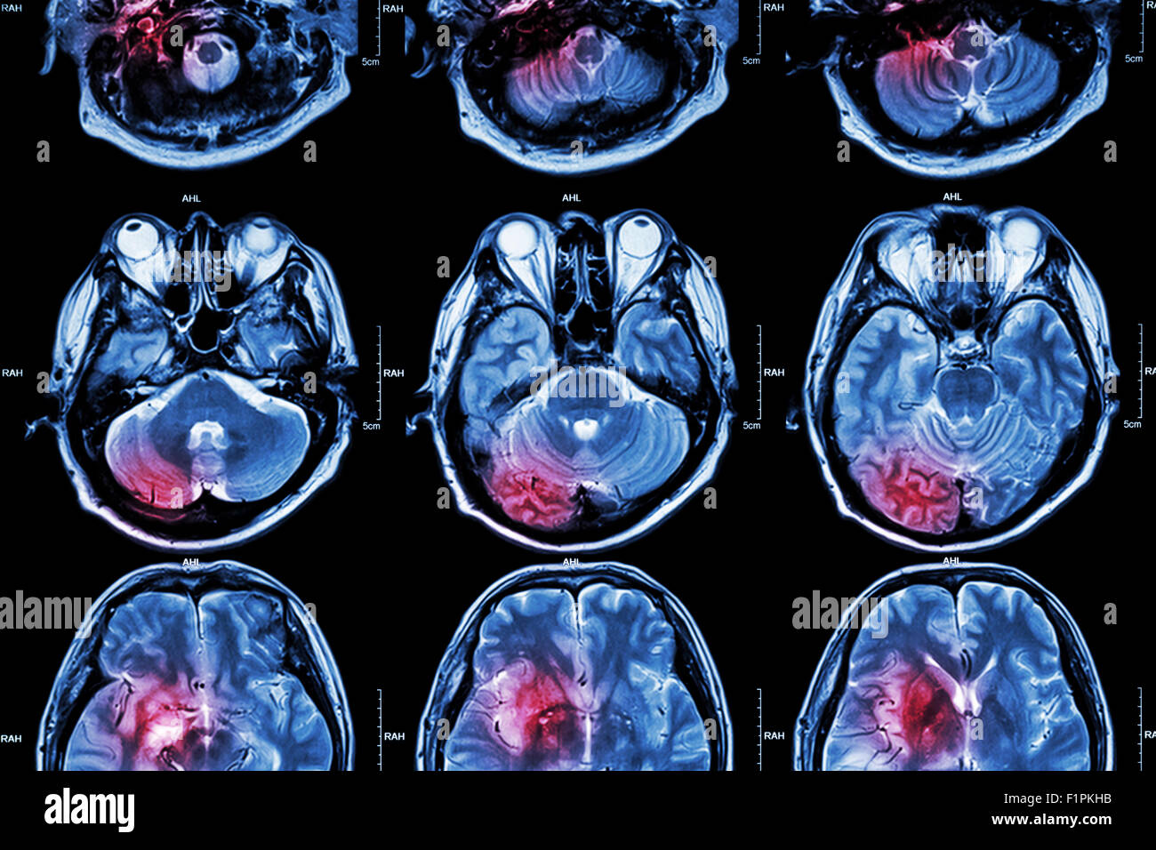 Film MRI ( Magnetic resonance imaging ) of brain ( This MRI of brain is normal brain but red color area is artificially - Stock Image