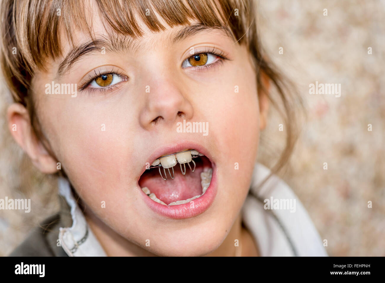 Crooked Teeth Stock Photos & Crooked Teeth Stock Images ...