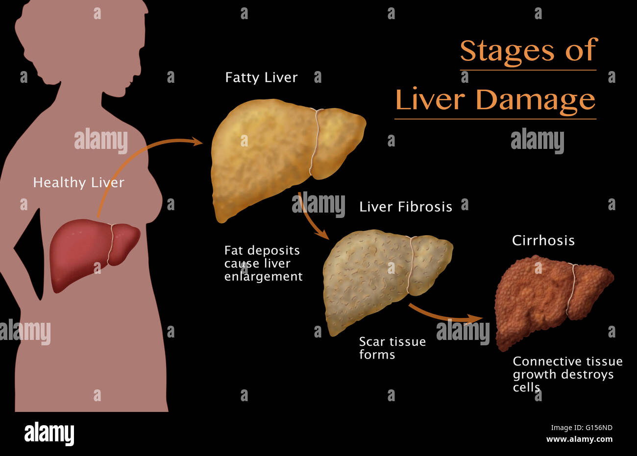 Lexapro And Alcohol Liver Damage