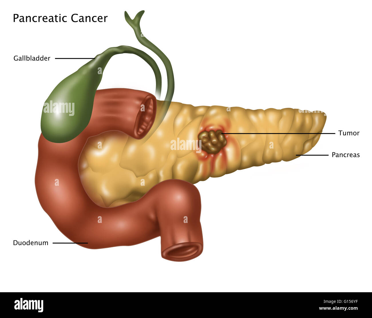 Illustration Of Pancreatic Cancer At Center Of The Pancreas Is A