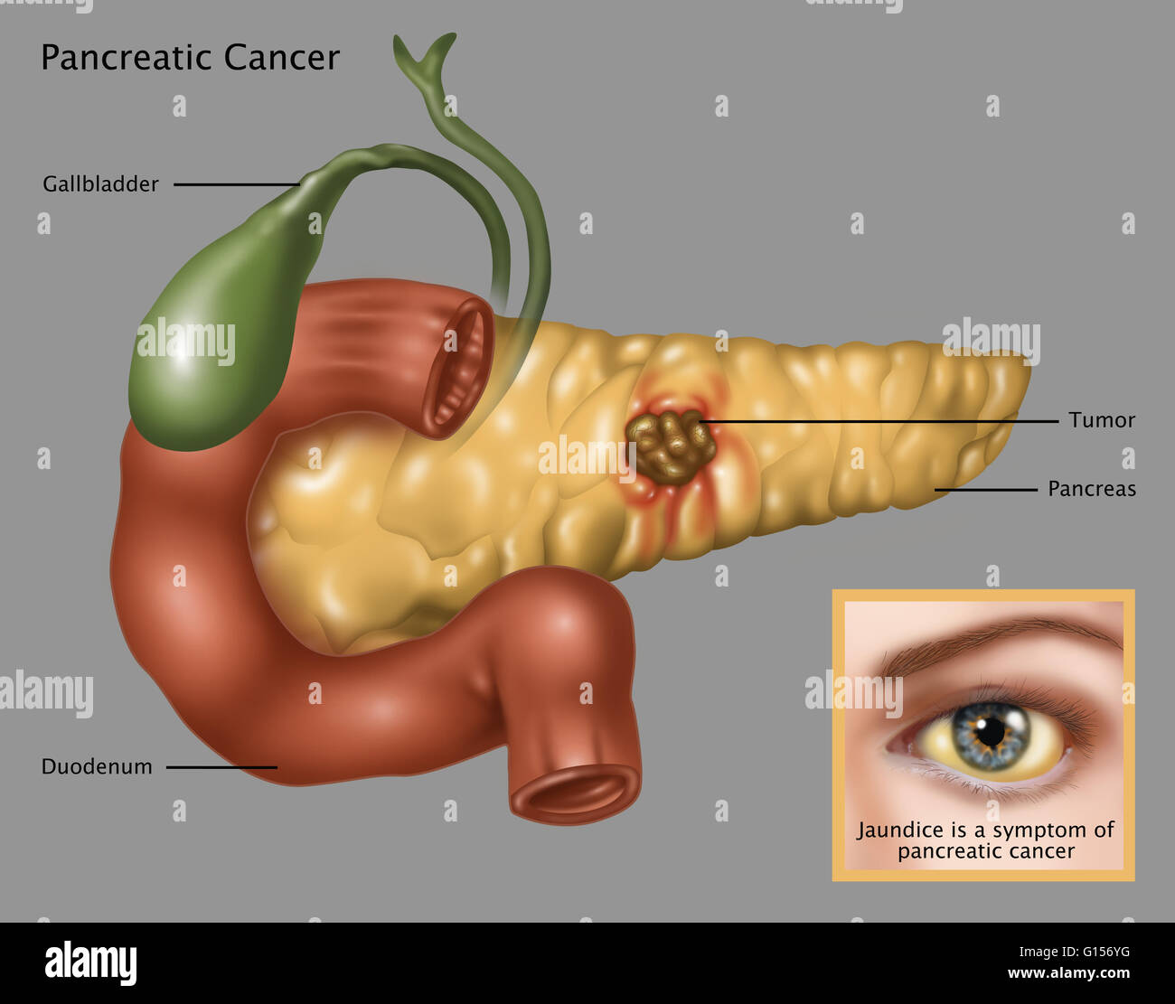 Illustration Of Pancreatic Cancer And Jaundice As A Symptom Lower