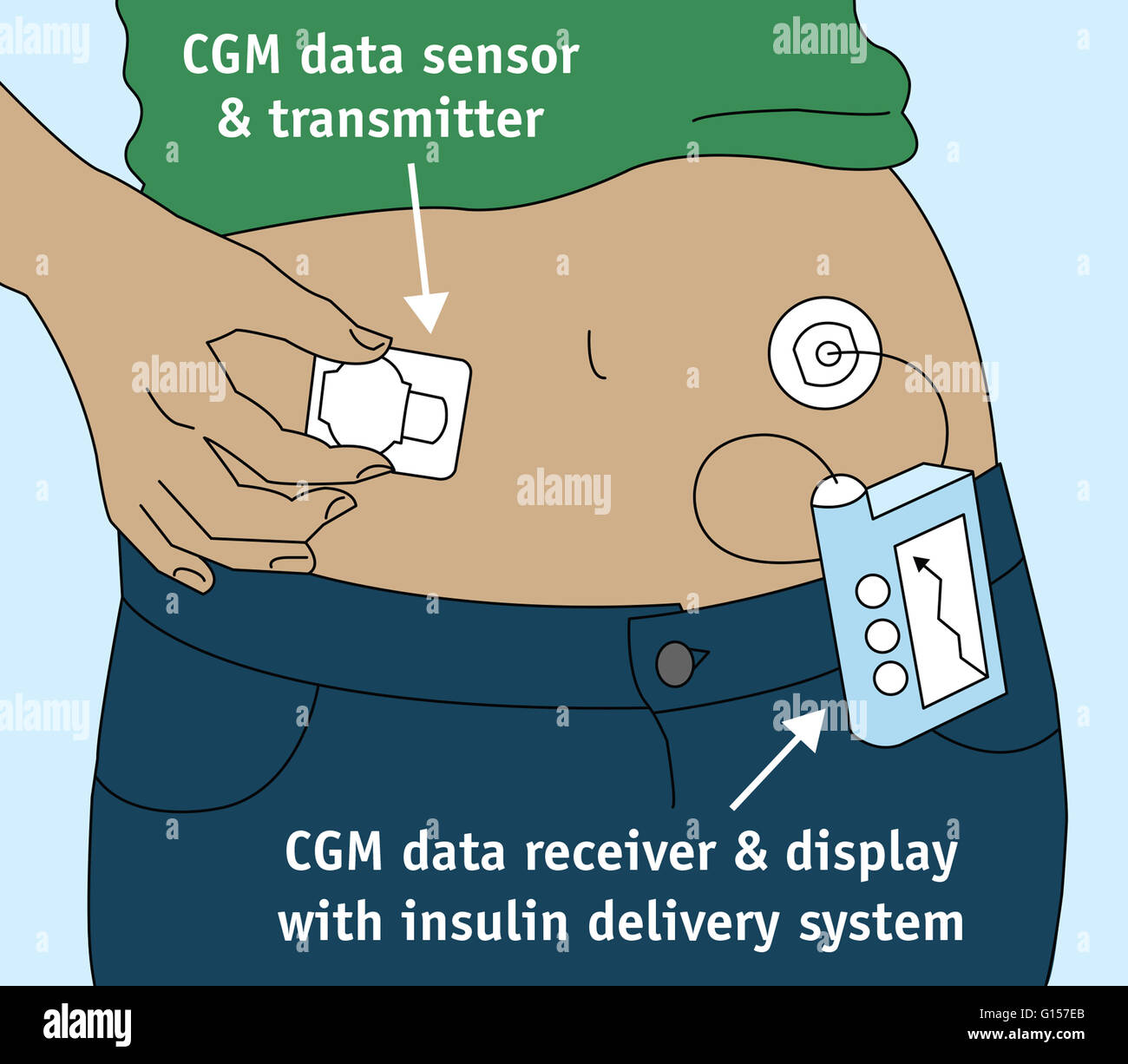 There are many options available allowing patients with diabetes to monitor  and manage their glucose levels. The Continuous Glucose Monitor (CGM) shown  here ...