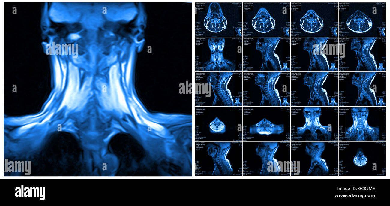 Magnetic resonance imaging of the cervical spine Stock Photo ...
