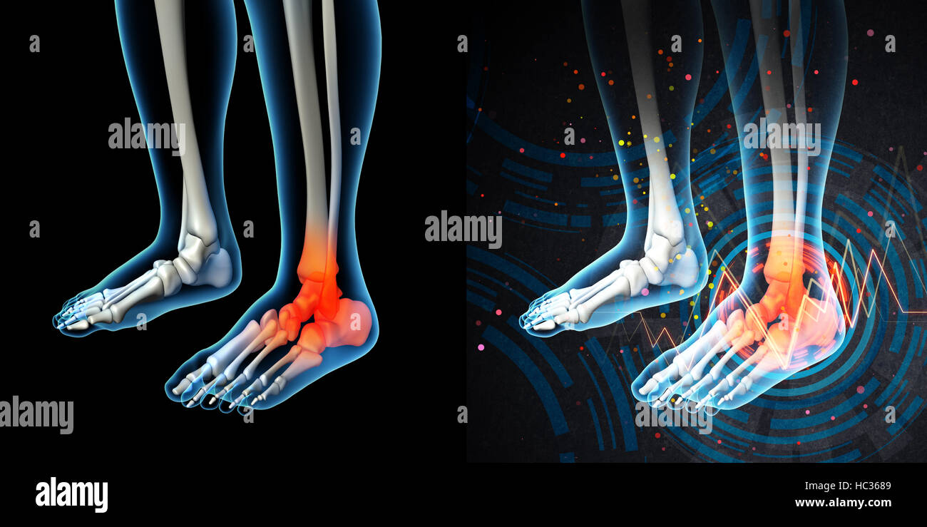 3d render human foot pain with the anatomy of a skeleton foot Stock ...