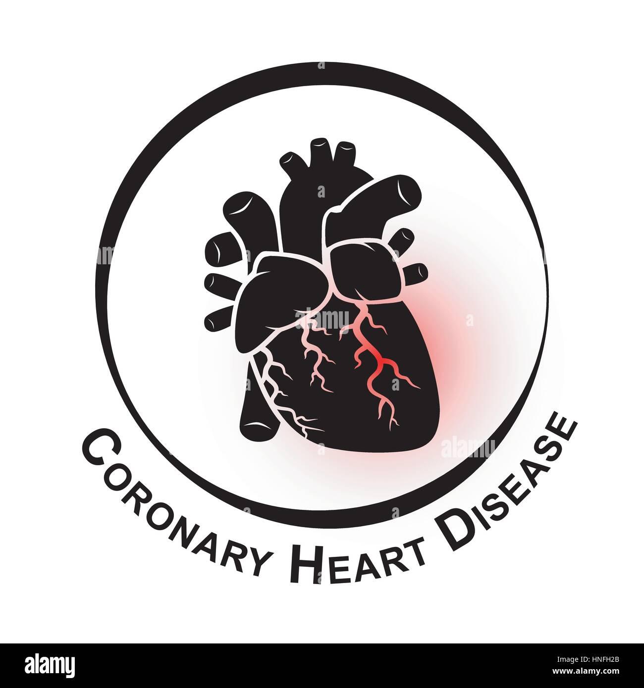 Coronary Heart Disease Symbol Ischemic Heart Disease Myocardial