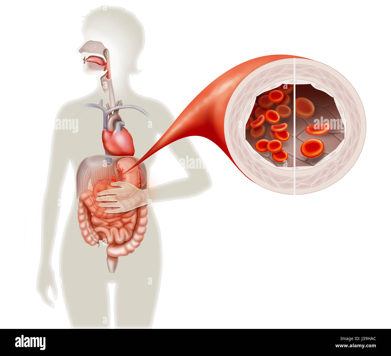 BIERMER\'S ANEMIA Stock Photo: 139738100 - Alamy