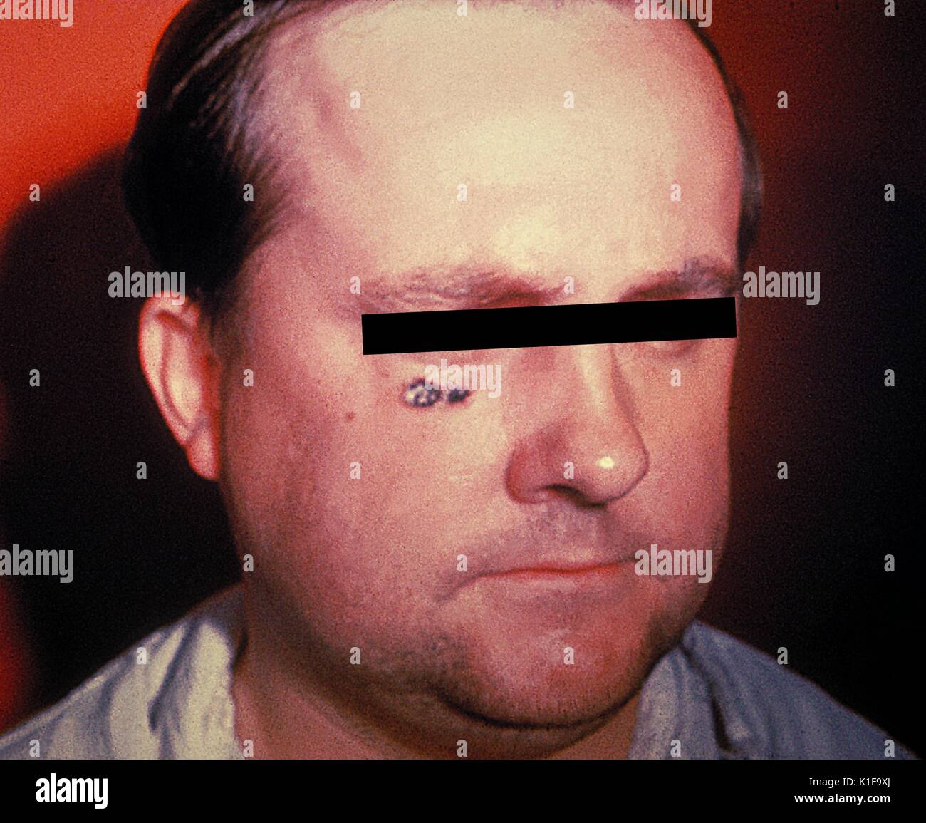 Anthrax skin lesion on face of man Cutaneous Image courtesy CDC, 1974. - Stock Image